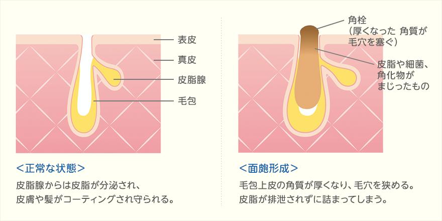 角栓の原因